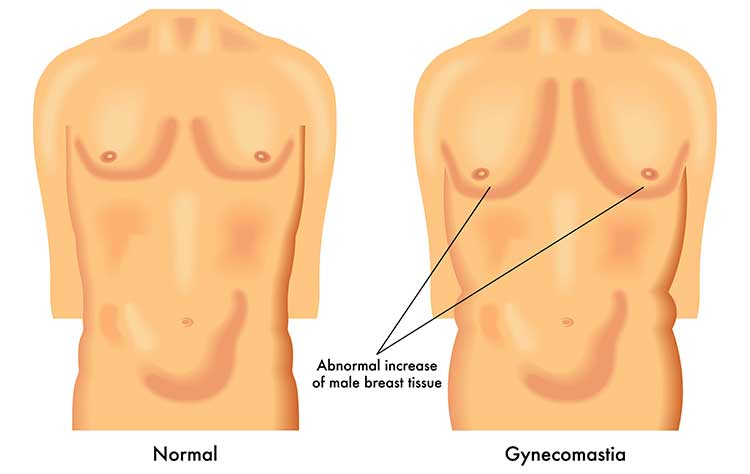 Gynecomastia Treatment in Hyderabad - The Best Male Reduction ...